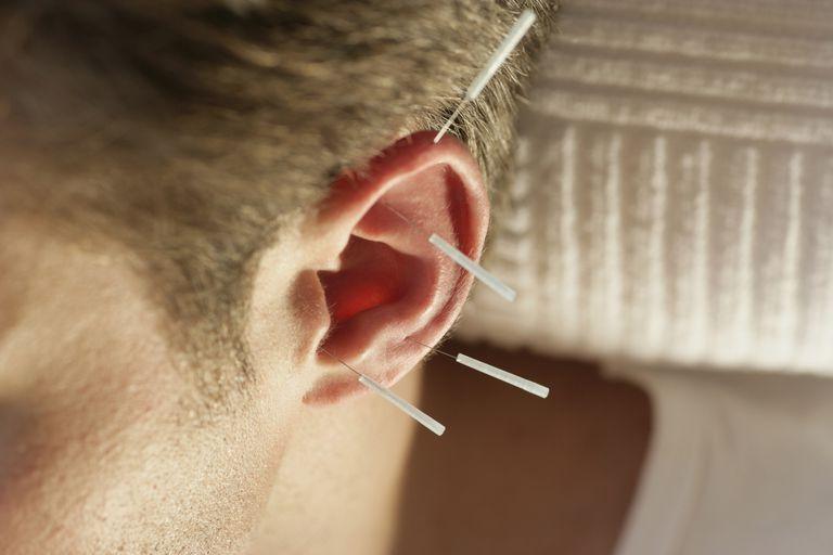 acupuncture : mauvaises techniques pour arrêter de fumer